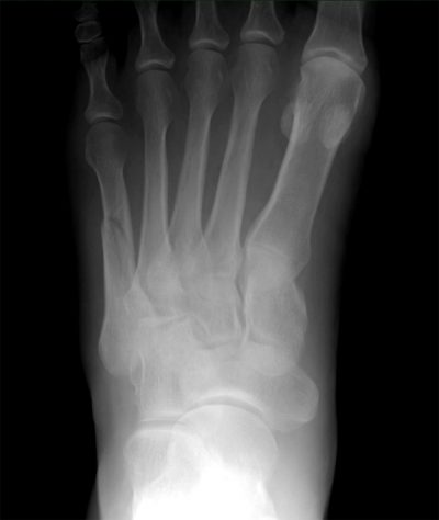 x-ray_ left_ 5th_metatarsal_ fracture