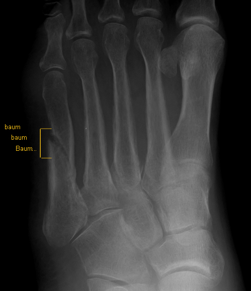 5th metatarsal mid-shaft fracture
